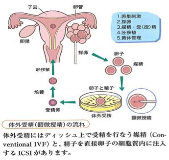 体外受精(顕微授精の流れ)